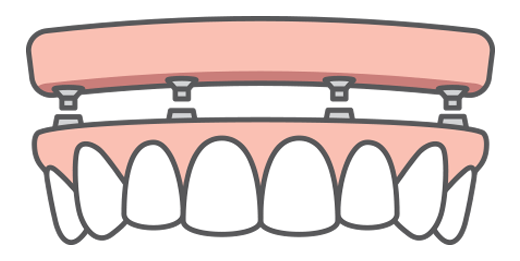 A top arch of teeth being replaced with dental implants