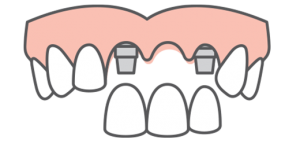 A top arch of teeth receiving multiple dental implants