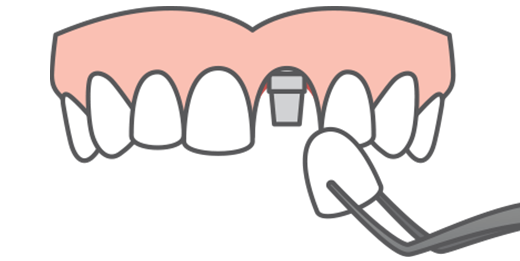 Graphic of a top arch of teeth receiving a dental implant